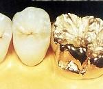 Phục hình kim loại quý