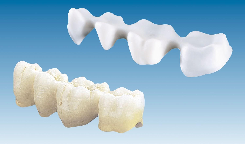 Phục hình răng sứ Cercon