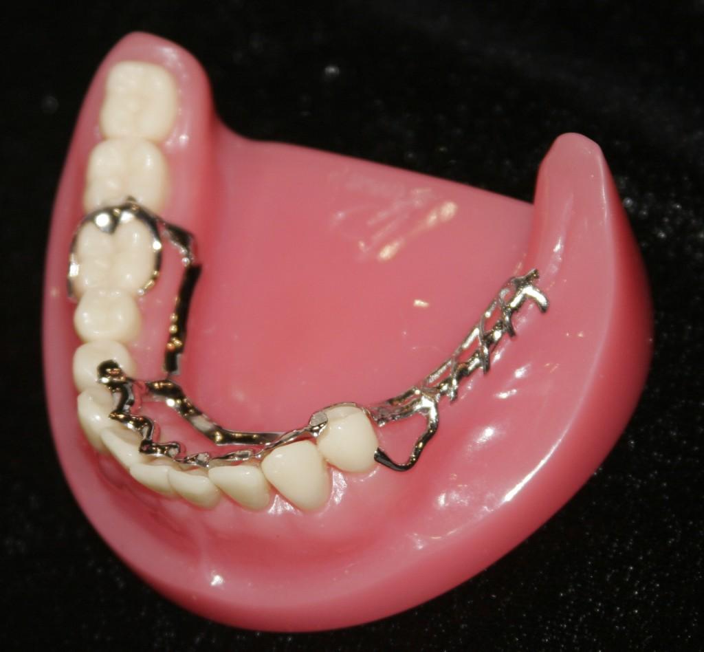 Phục hình răng nhựa cứng